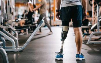 Avances en cirugías y mejores materiales para prótesis